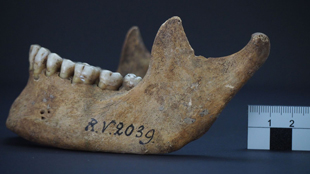 Plague case 5000 years ago in Latvia: No evidence of an epidemic at the time